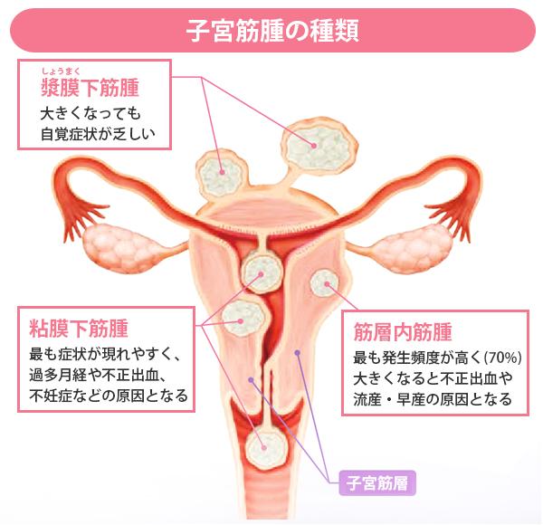 子宮 筋腫 閉経 後
