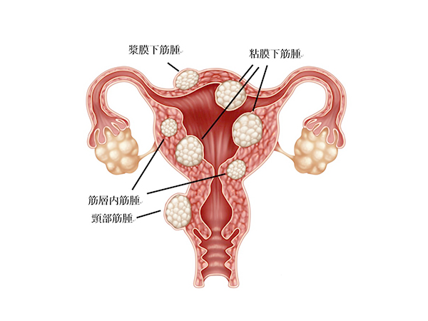 筋腫 子宮 子宮筋腫